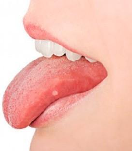 Aftas - Ulceras Bucales